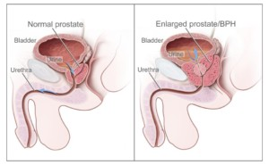 Normal prostate and benign prostatic hyperplasia (BPH). Source