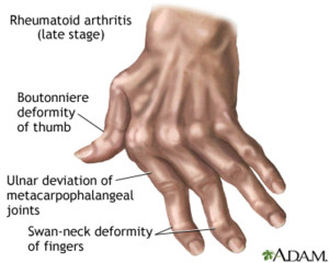 How to deal with Arthritis...effectively