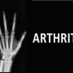 How to Cure Arthritis