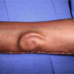 A New Ear Transplant Inside A Soldier's Forearm